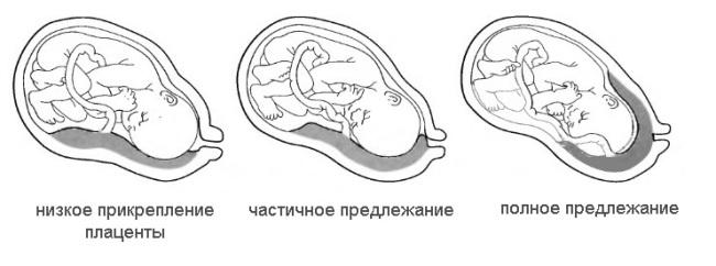 Плацента низко расположена при беременности